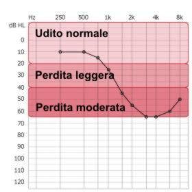 audiogramma sordità livelli ipoacusia